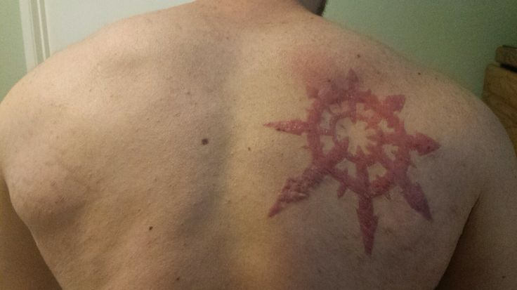 Mark of Chaos scarification healed after about 6 weeks. It's still in the process of healing and will also lighten in color over time