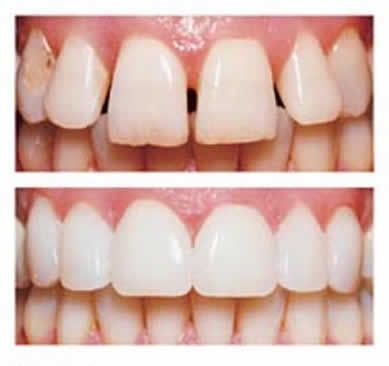 Cases requiring facets for Veneer Cosmetic Dentistry