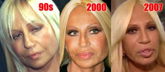 Donatella Versace How Old Is She   Donatella Versace Plastic Surgery Before And After