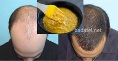 Vypadávanie vlasov trápi väčšinu mužov, ale aj mnoho žien. Namiesto kupovania drahých prípravkov z lekárne vyskúšajte túto domácu masku.