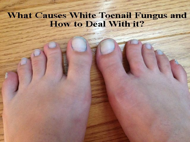 White toenails can develop for several reasons. Read how it can take place and also know how to cure white toenail fungus using different methods at home.