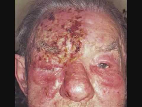 Best Way To Treat Herpes Naturally
