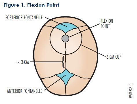 flexion point ART of OVD