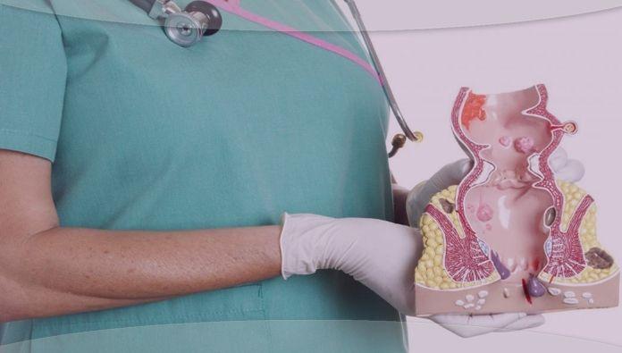 علاج البواسير طبيعيا