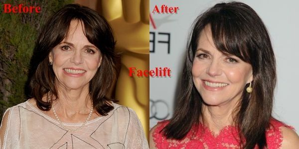Sally Field Plastic Surgery Before and After Plastic Surgery, Face Lift – #Face …