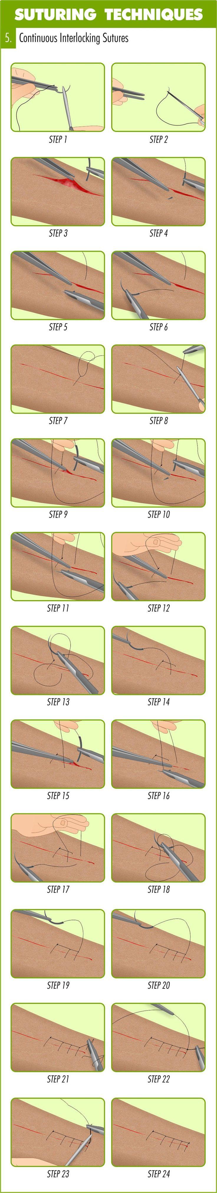 Continuous Interlocking Suture Suturing Technique