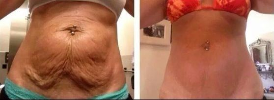 Nerium Firm Body Contouring Cream Helps Tighten Loose