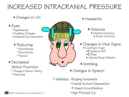 Increased Intracranial Pressure Pediatric Nursing