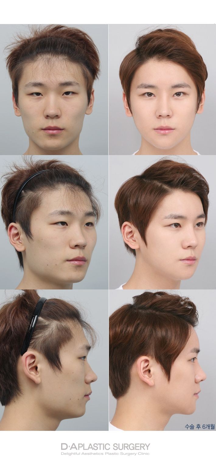 DA patients before and after photos Enquiry/make a reservation: info-en@daprs.com More info: en.daprs.com  #daplasticsurgery #da #daprs #plasticsurgery #cosmeticsurgery #beauty #beautiful #rhinoplasty #rhino #nosejob #gangnam #gangnamplasticsurgery #koreaplasticsurgery #plasticsurgeryinkorea #korea #koreabeauty #model #koreanmodel #maleplasticsurgery #plasticsurgeryformen