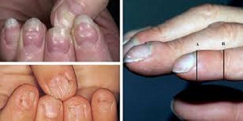 These 6 Nail Conditions Can Discover A Lot About Your Health, Even The Risk Of Cancer And Thyroid Gland Disease!  http://www.healthyfitlifetime.com/healthy/6-nail-conditions-can-discover-lot-health-even-risk-cancer-thyroid-gland-disease/