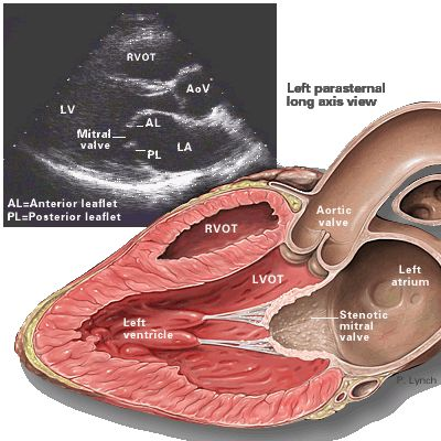 Echocardiography Images | Yale Atlas of Echo-Mitral stenosis