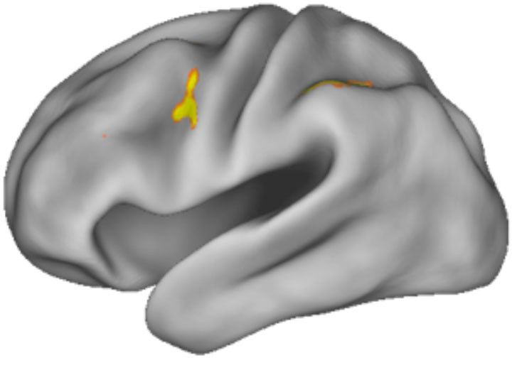Working memory at work. The area around the dorsal anterior premotor cortex registered activity in MRI scans as subjects underwent experiments designed to test how the brain selects from working memory.