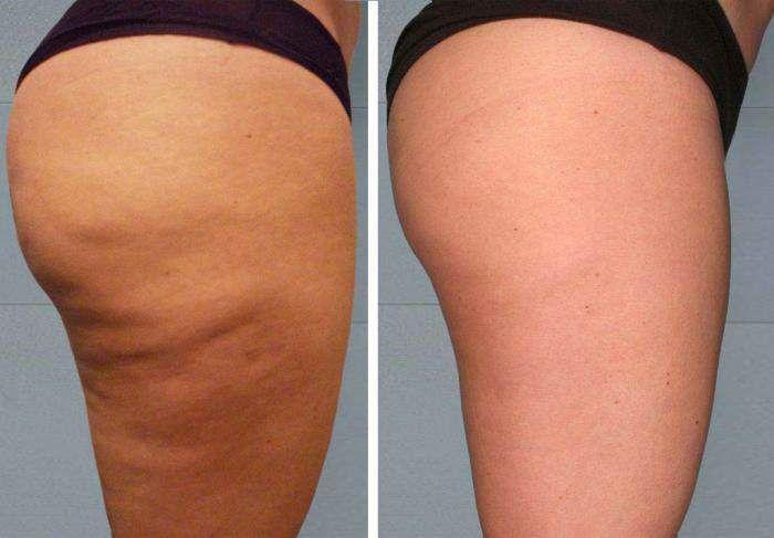 Graisse du ventre et cellulite: voici comment les combattre