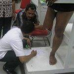 Pembuatan Kaki palsu tepat lutut