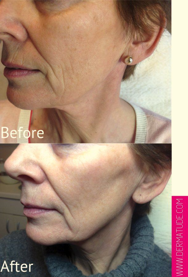 #Dermatude Meta Therapy Pigment Equalizer Before and After.