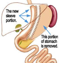 how to keep losing weight after gastric sleeve