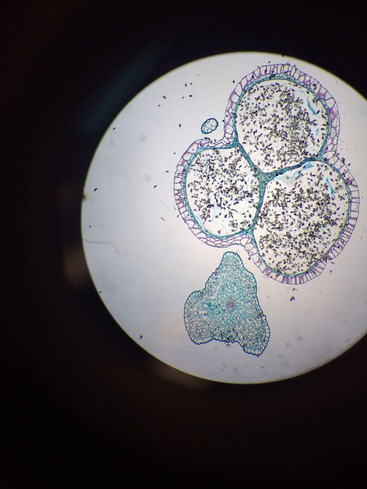 Psilotum Sporangium  Whisk Fern  Monilophyta