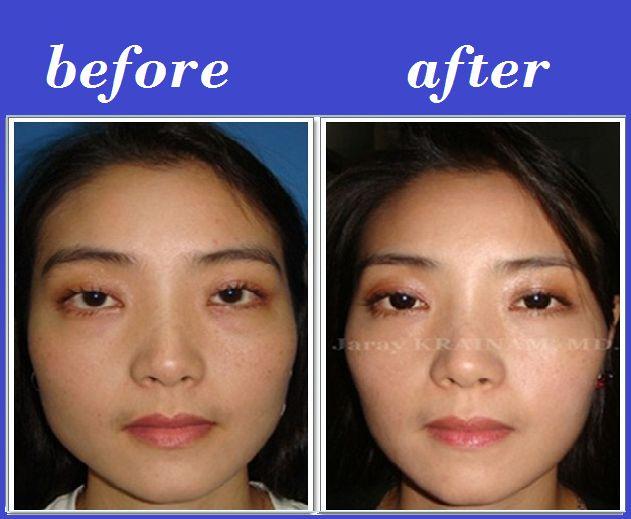 Jaw Reduction Botox
