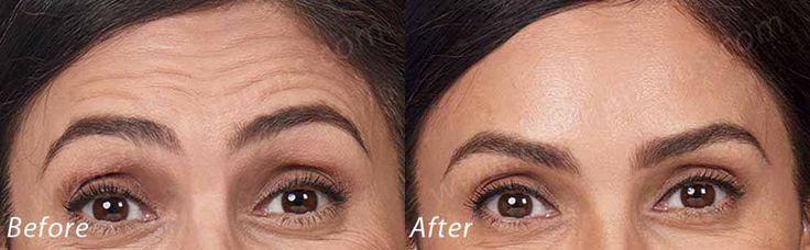 https://flic.kr/p/Zoq1EM | Botox Cosmetic | Botox Cosmetic for Forehead, Glabella, Crow's Feet Dr. John L. Burns, Jr., MD Board Certified Plastic Surgeon President, Dallas Plastic Surgery Institute