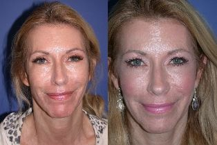 """This beautiful, """"over fifty"""" woman maintains her youthful appearance with Fractionated Laser Treatments (Palomar Ablative 2940 and Non-ablative 1540) of her Face and Neck as well as other maintenance procedures.  The Laser treatments have helped improve her overall skin texture as well as old scarring and pigmentary issues...#drquardt #drq #plasticsurgery #laserskinresurfacing"""