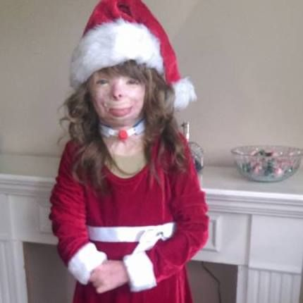 NEW YORK - A little girl in New York with burns over 75 percent of her body has only one wish for Christmas this year -- enough cards to fill her aunt's card tree. Two years ago, Safyre Terry's fat...