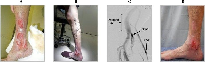 Fabry Disease male patient on ERT 10 yrs... 2018 paper.. Fig 2: Multiple huge ulcers located at the lateral aspect of the left leg (A) + in the medial aspect of the right leg (B) in July 2016. Right leg venography (C) showed venous reflux + varices on the great saphenous vein and small saphenous vein. Three months after the varices operation (October 2016), the ulcers improved (D). Full citation in the note above. Source link in the comments.
