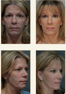 Endoscopic mid-face lift.