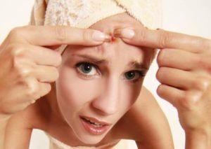 Co pomaga na trądzik? Przeczytaj o wszystkich domowych sposobach. http://najlepszepreparaty.pl/jak-pozbyc-sie-tradziku-na-twarzy/