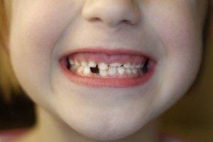 Mamo, tato, ząb mi się ukruszył, czyli urazy zębów u dzieci