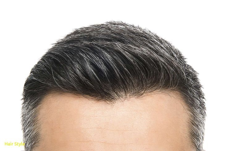 Frisch Wie Man Deine Haarlinie Andert Dutt Haarausfall Strengerdutt Frisuri Andert Deine Dutt Frisch Frisur Haartransplantation Haarausfall Haare