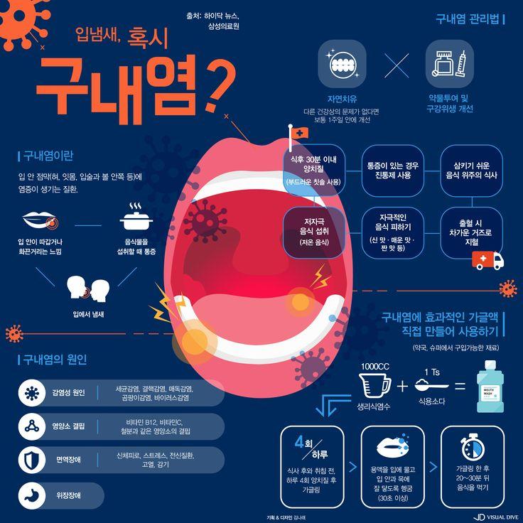 양치질로 해결 안 되는 입 냄새, 혹시 구내염? [인포그래픽] #halitosis / #Infographic ⓒ 비주얼다이브 무단 복사·전재·재배포 금지