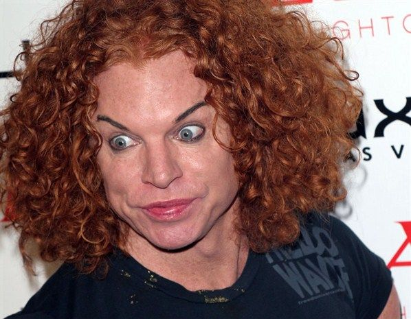 carrot top funny pics Carrot Top Plastic Surgery #CarrotTopPlasticSurgery #CarrotTop #celebritypost