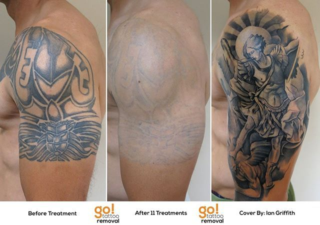 Pin By Go Tattoo Removal On Tattoo Removal In 2020 Tattoo Removal Laser Tattoo Removal Tattoos