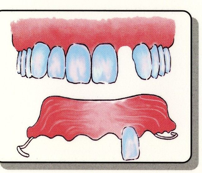 17 Best Images About Partial Dentures Lake Worth Florida
