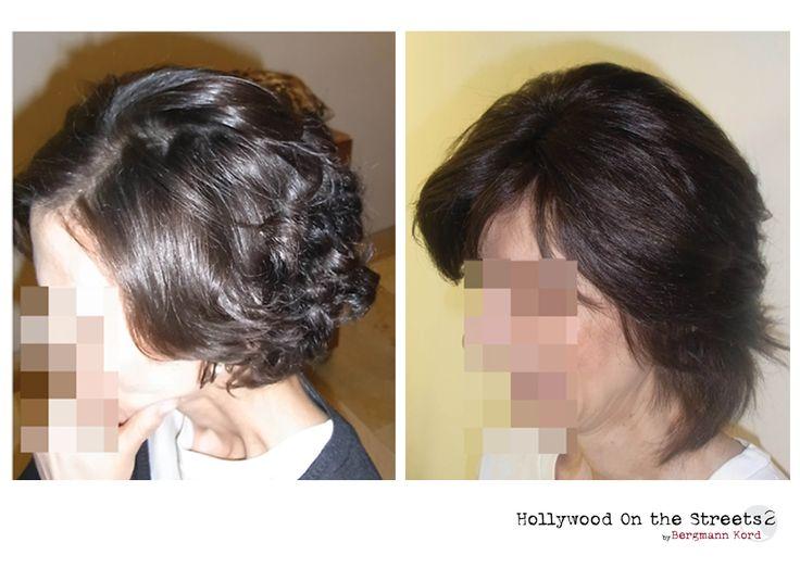 www.hos2.gr Αποκατάσταση μαλλιών με την τεχνική HOS-2. Φωτογραφίες με τα αποτελέσματα.