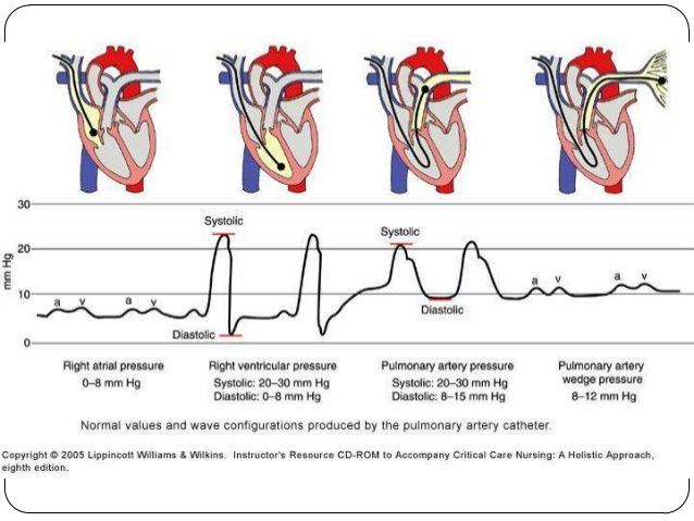 Pulmonary Artery Catheter Waveforms Google Search Med