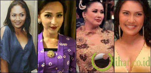 7 Artis Indonesia yang pernah Lakukan Operasi Payudara
