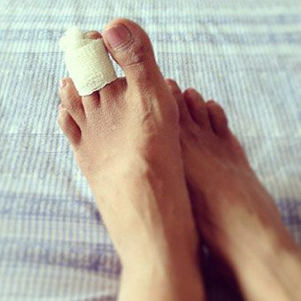 Broken toes are a common fracture for people of all ages. The little toe (pinky) is the most common toe fractured. Most broken toes can be treated with ice, elevation, rest, and buddy taping the broken toe. Sometimes a broken toe may need to be treated by a specialist.