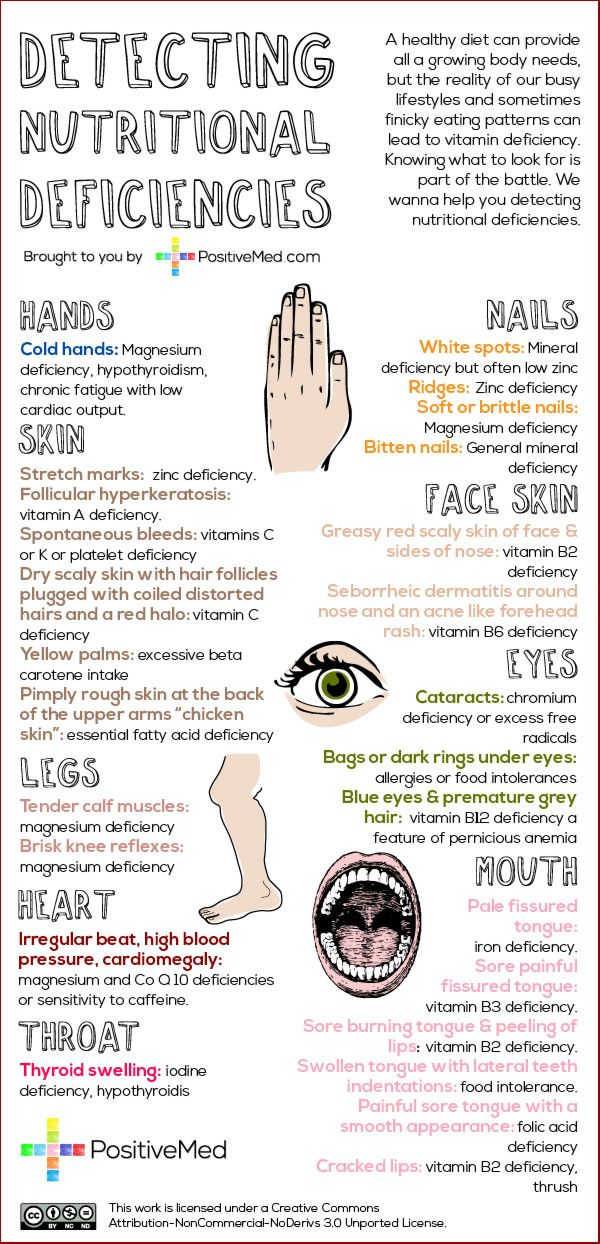 A healthy diet can provide all a growing body needs, but the reality of our busy lifestyles and sometimes finicky eating patterns can lead to vitamin deficiency. Knowing what to look for is part of the battle. We wanna help you detecting nutritional deficiencies. Symptoms are actually better indicators of nutritional deficiency than signs.