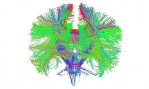 The brain's white matter seen from the front, in Anterior view of all white matter tracts of the brain, as obtained by diffusion tensor imaging.