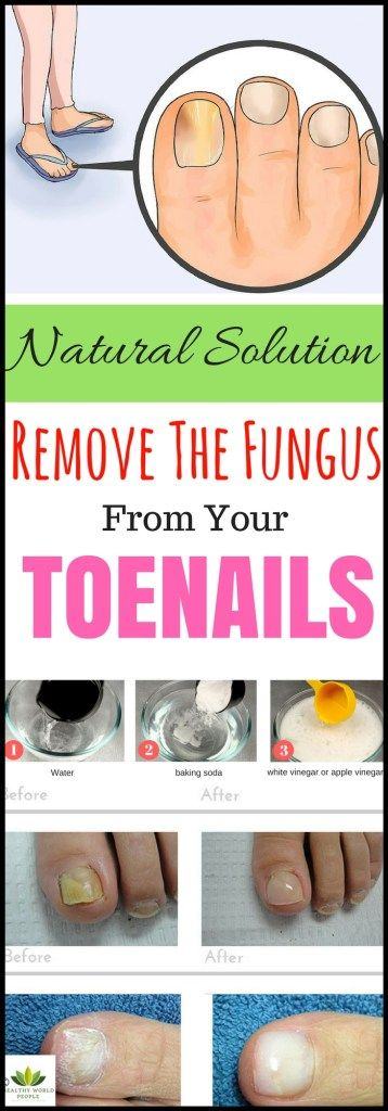 "The fungi infections can appear anywhere on the body. It can appear in the body or attack it, usually on toenails, fingernails or skin under nails. As to AAD– American… Continue reading ""Try This 2-Ingredient Natural Solution And Remove The Fungus From Your Toenails For Good!"""