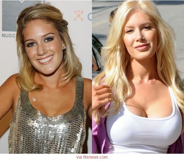 Celebrities With Plastic Surgery Heidi Montag Courteney: 1000+ Ideas About Celebrity Plastic Surgery On Pinterest