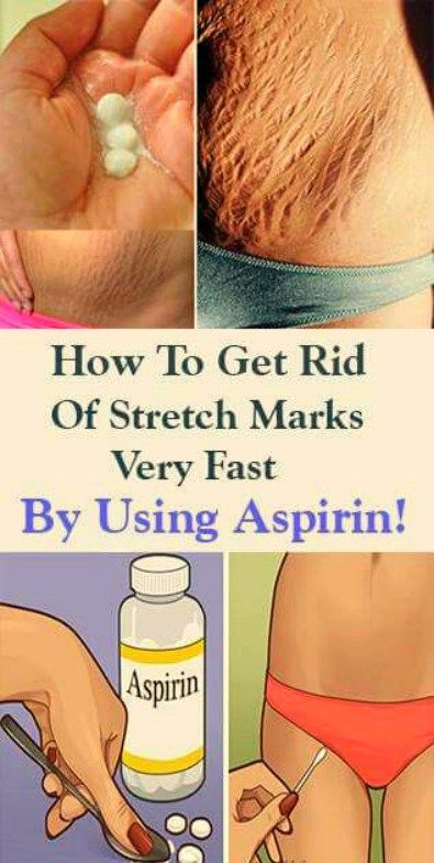 how to get rid of stretch marks very fast by using aspirin..