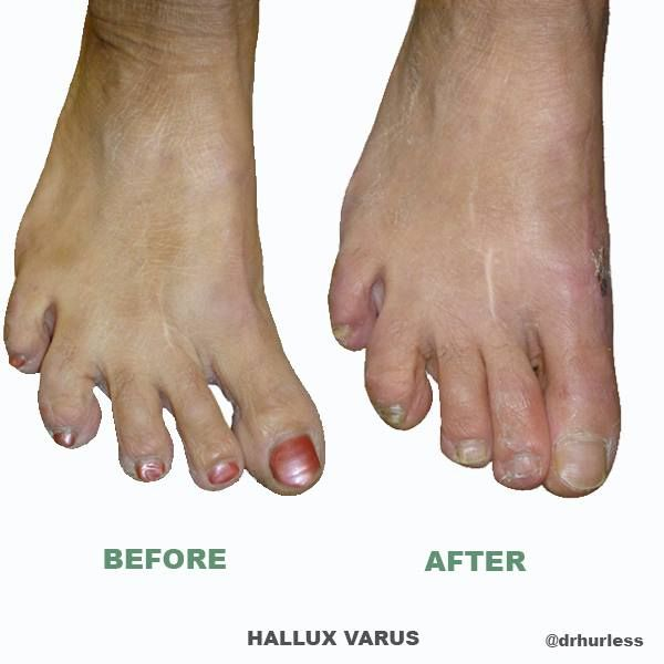Best Shoes For Hallux Varus