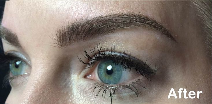 Eyebrow trends come and go, but this new brow procedure might be here to stay.