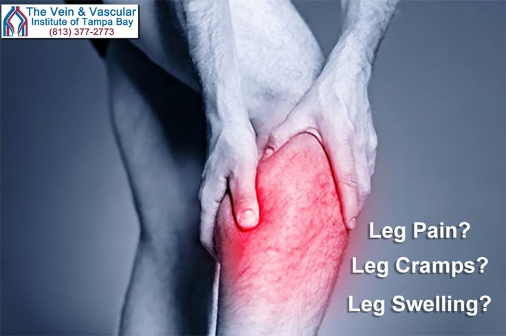 When blood clots form in the lower legs, they can cause leg pain, leg cramps, leg swelling, redness and discoloration of the skin on the lower leg.  If you are experiencing any of these symptoms a quick vein screening at The Vein and Vascular Institute of Tampa Bay can help discover the presence of a blood clot, saving your life.  Learn more at: https://www.tampavascularsurgeon.com/service/vascular-screening/  #TampaVeinScreening #VeinDisordersTampa #VeinDiseaseScreeningTampa