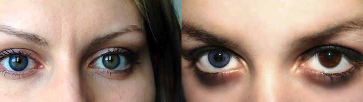 Диапазон цветовой гаммы человеческой радужной оболочки очень велик. Начиная от практически полностью прозрачной у альбиносов и заканчивая глубокой черной у африканских народов. Но такое явление, как глаза-хамелеоны, остается до конца не изученным и отчасти загадочным.   #глаза #глазахамелеоны #медицина #офтальмология