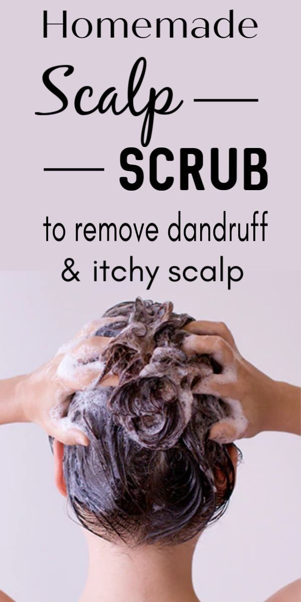 Most Effective Home Remedies To Get Rid Of Dandruff Homemade Scalp Treatments Dry Scalp Treatment Diy Itchy Scalp Treatment