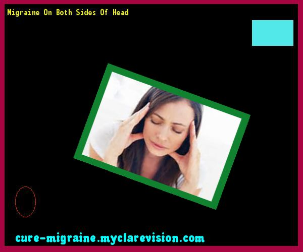 Migraine On Both Sides Of Head 114727 - Cure Migraine