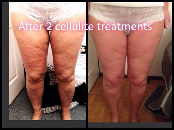 After 2 Sessions Of Cellulite Reduction Using The Radio
